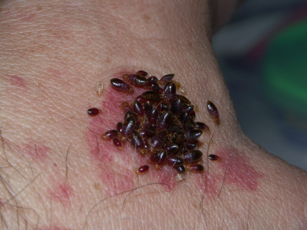 bed bug bite grove city